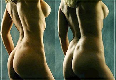 как убрать жир с боков спины женщине