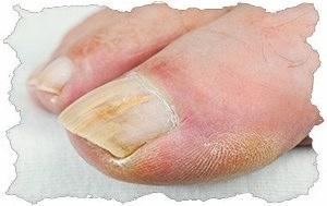 На пальцах ног грибок