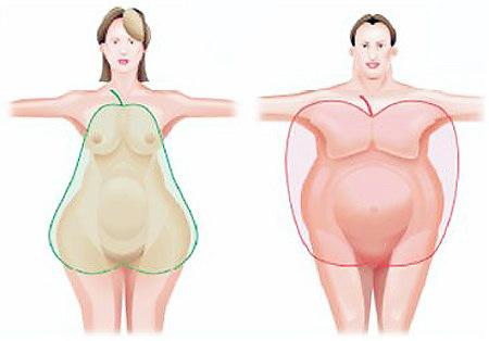 Абдоминальное ожирение.
