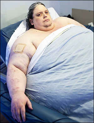 как похудеть во время лактации форум