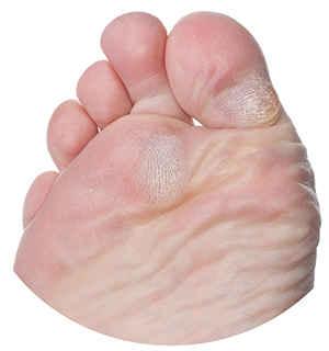 Мозоли на ноге